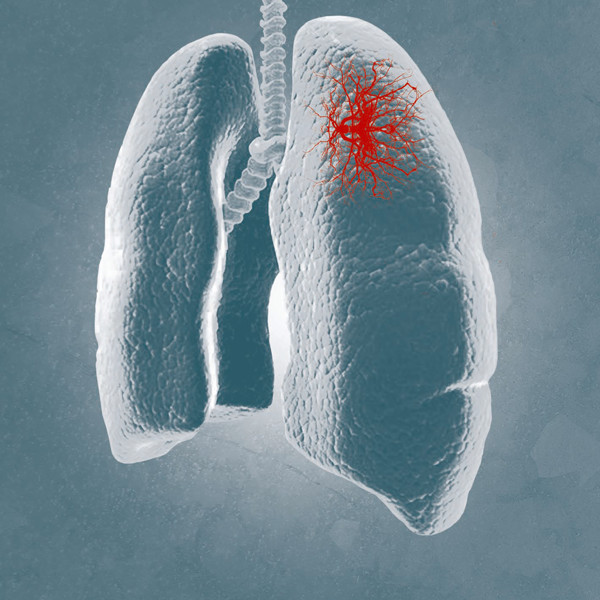 Respiratory Pathogens 33 PCR Kit